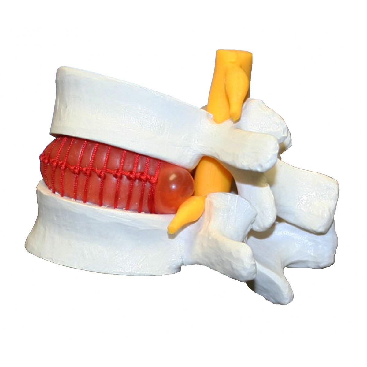 VAV235 Prolapsed Intervertebral Disc - Vertebral Column - Anatomical ...